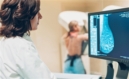 Egypt's DilenyTech Secures Grant to Scale AI-Powered Platform for Breast Cancer Detection